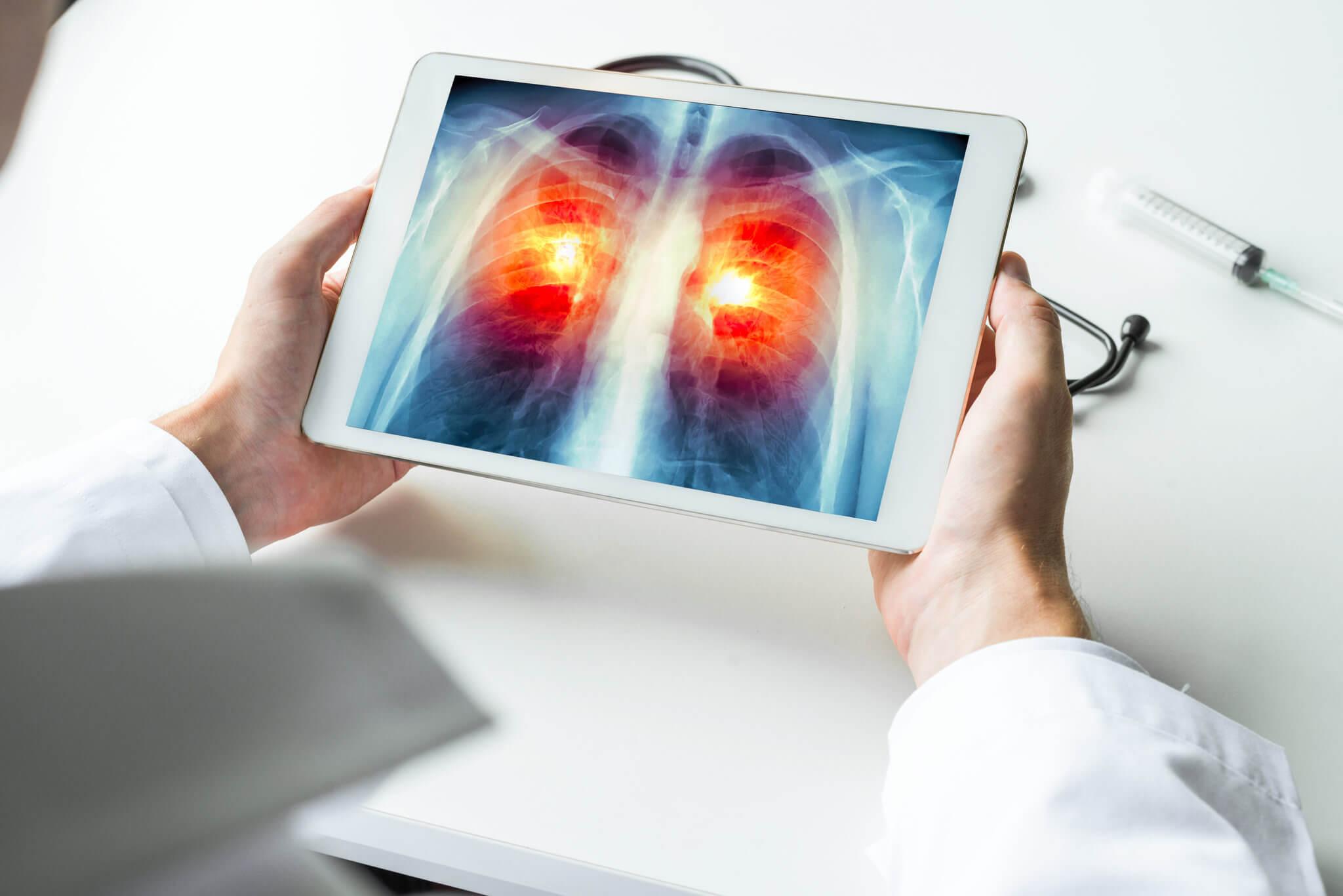 Choroby płuc - kiedy kaszel może być powodem do niepokoju?